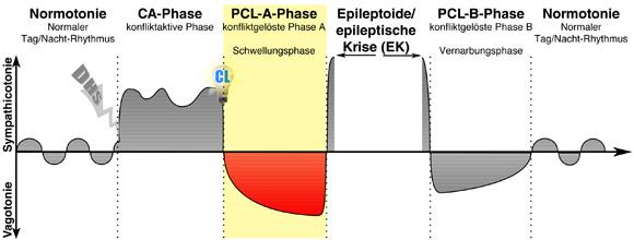 PCL-A